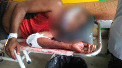 Photo of Koderma: पुराने विवाद में गोली मारकर घायल किया